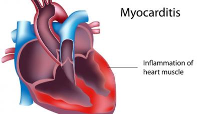 Hà Nội xuất hiện vius lạ gây viêm cơ tim dẫn đến tử vong liệu có cơ sở?