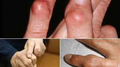 Dấu hiệu của bệnh gút và những điều cần phải biết